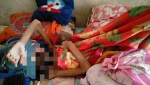 Idap Penyakit Tumor Langka, Bocah 13 Tahun di Cianjur Butuh Uluran Tangan