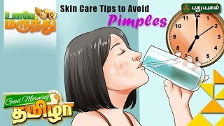Tips to Prevent Acne (Pimples) | Unave Marundhu 24-02-2017 Puthuyugam Tv