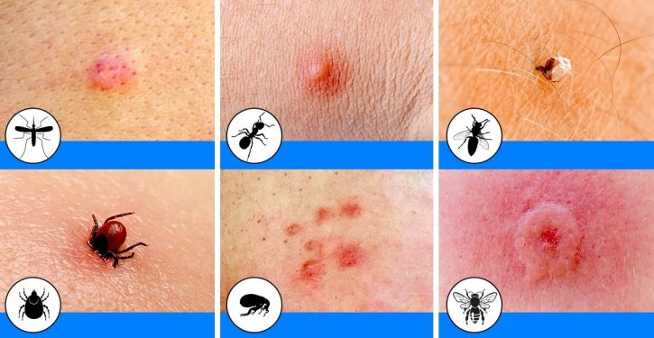 12 Common Insect Bites And How To Spot Each One