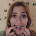 Nueve meses con Invisalign: proceso + cambios + dolores ♦ vídeo