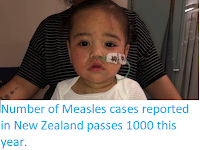 https://sciencythoughts.blogspot.com/2019/09/number-of-measles-cases-reported-in-new.html