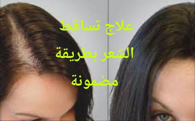 علاج تساقط الشعر للنساء والرجال بطريقة مضمونة وفعالة.