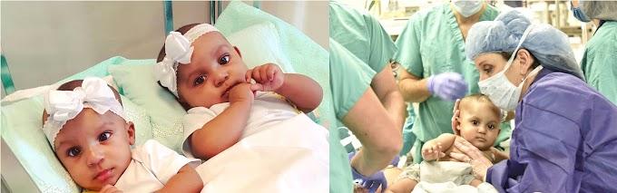 En 21 horas de operación separan exitosamente siamesas nativas de Moca en hospital de NY