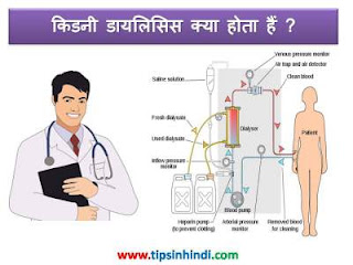 dialysis-Information-in-hindi
