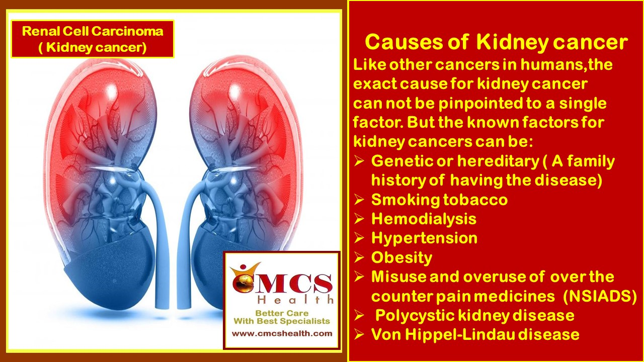 Medical Tours To India Cmcs Health Renal Cell Carcinoma Kidney Cancer Treatment In India Cmcs Health