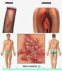 โรคเริมที่อวัยวะเพศ