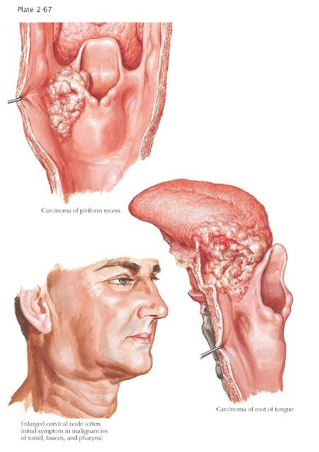 Malignant Tumors of Hypopharynx