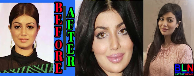 AYESHA TAKIA Bollywood Actresses Before and After Plastic Surgery