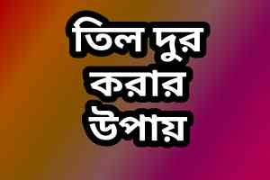 Til Dur Korar Upay (তিল দূর করার উপায়) Bangla Tips