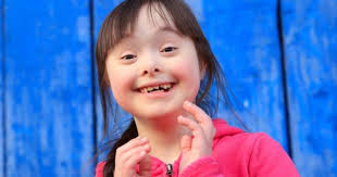 a few people only who know that's trisomy is...