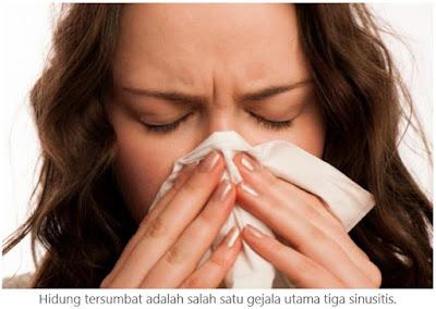 Sinusitis: Penyebab, Gejala dan Perawatannya