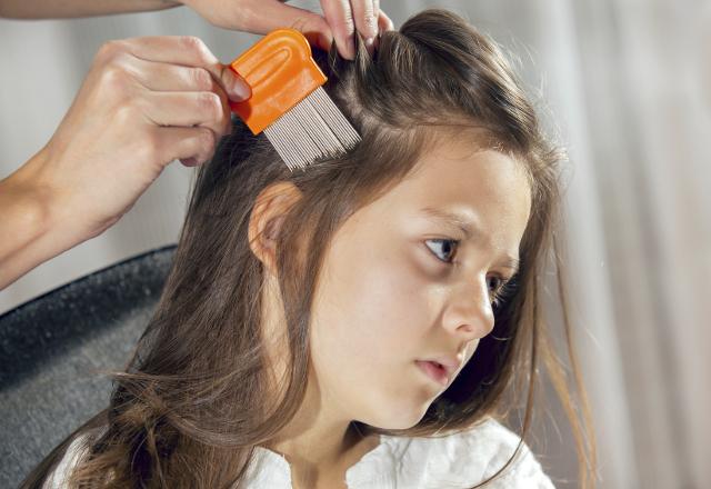 علاج القمل في الشعر
