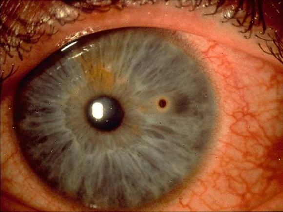 how ro remove ocular foreign body