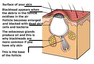 ageless beauty, timeless skin: blackheads & whiteheads ... black head diagram engine head diagram