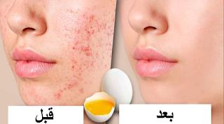 طريقة مذهلة لإزالة الرؤوس السوداء وشد مسام الوجه بشكل طبيعي... روعىة !!!