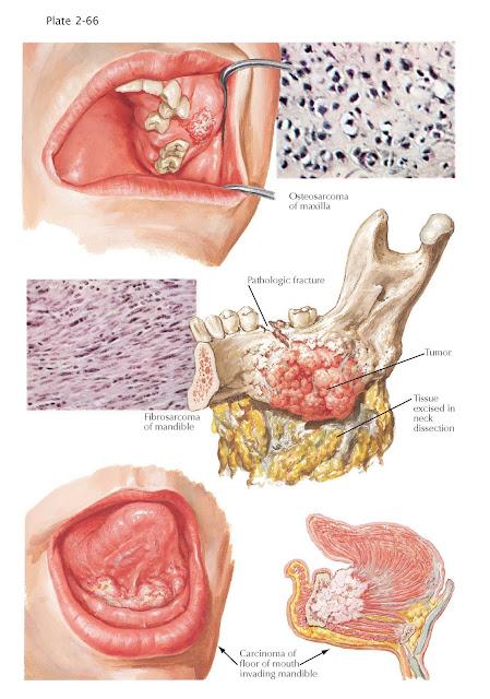 Malignant Tumors of Jaw
