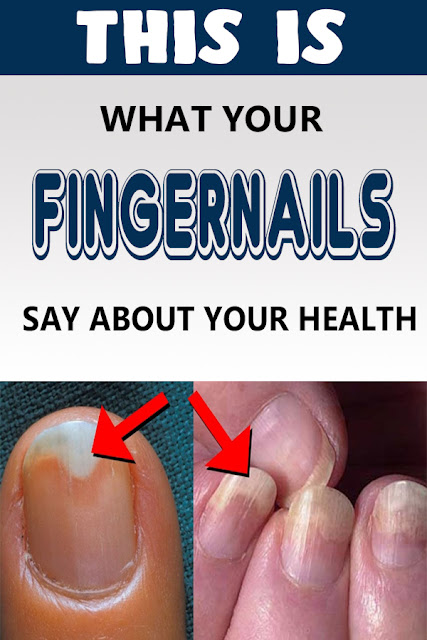 This Is What Your Fingernails Say About Your Health