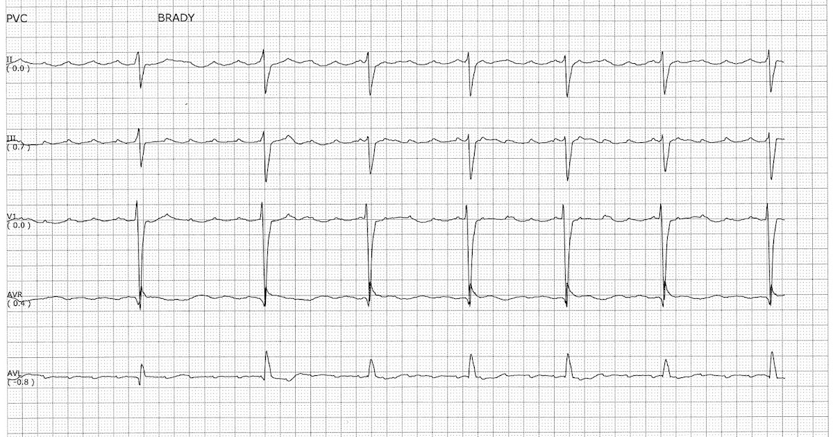 Float Nurse: Atrial Flutter with Slow Ventricular Response