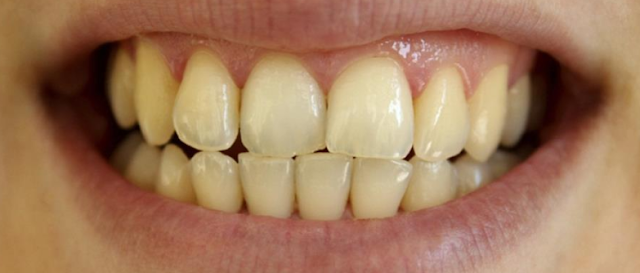 What Causes Teeth To Discolour | Diseases And Treatment |
