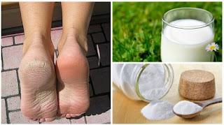 Combinez ces deux ingrédients naturels pour avoir des pieds lisses et beaux