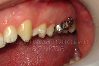 Ортодонтическое кольцо с брекетом  может травмировать щеку
