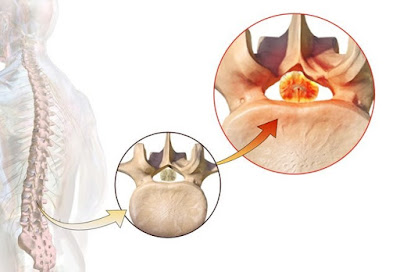 lumbar-spine-surgery