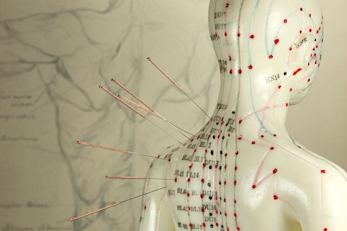 Acupuncture needles on the back of a female model