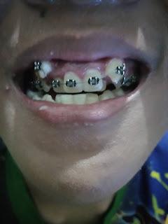 bagaimana proses pemasangan behel gigi pada anak