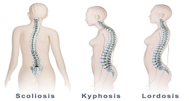 kelainan tulang punggung, akibat kelainan tulang punggung, bahaya kelainan tulang punggung, pengaruh kesehatan kelainan tulang punggung, solusi kelainan tulang punggung, bentuk kelainan tulang punggung