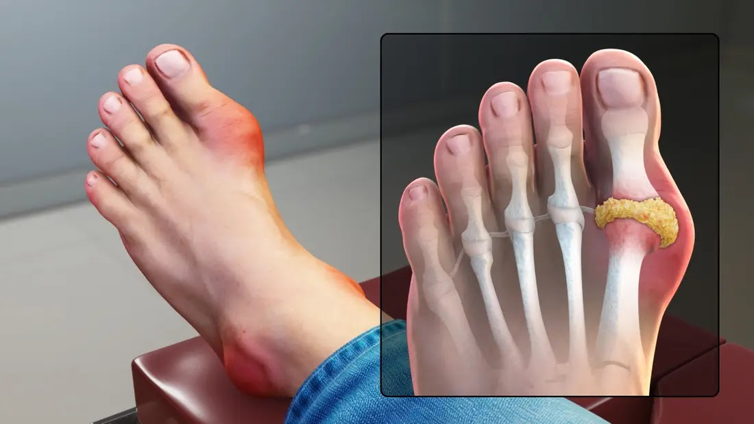 Gout | Symptoms and Treatment of Gout