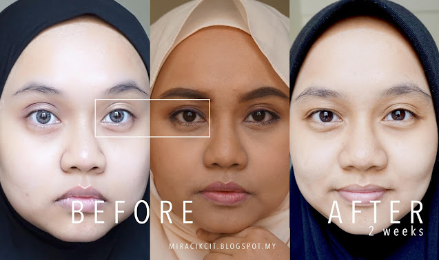 Before and After Using Paula's Choice Hydralight Skincare Range