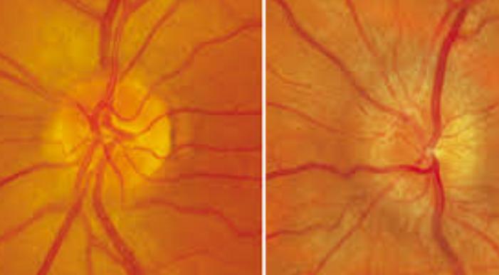 Pengertian Penyakit Neuritis , Penyebab Dan Pencegahannya Beserta Gambarnya