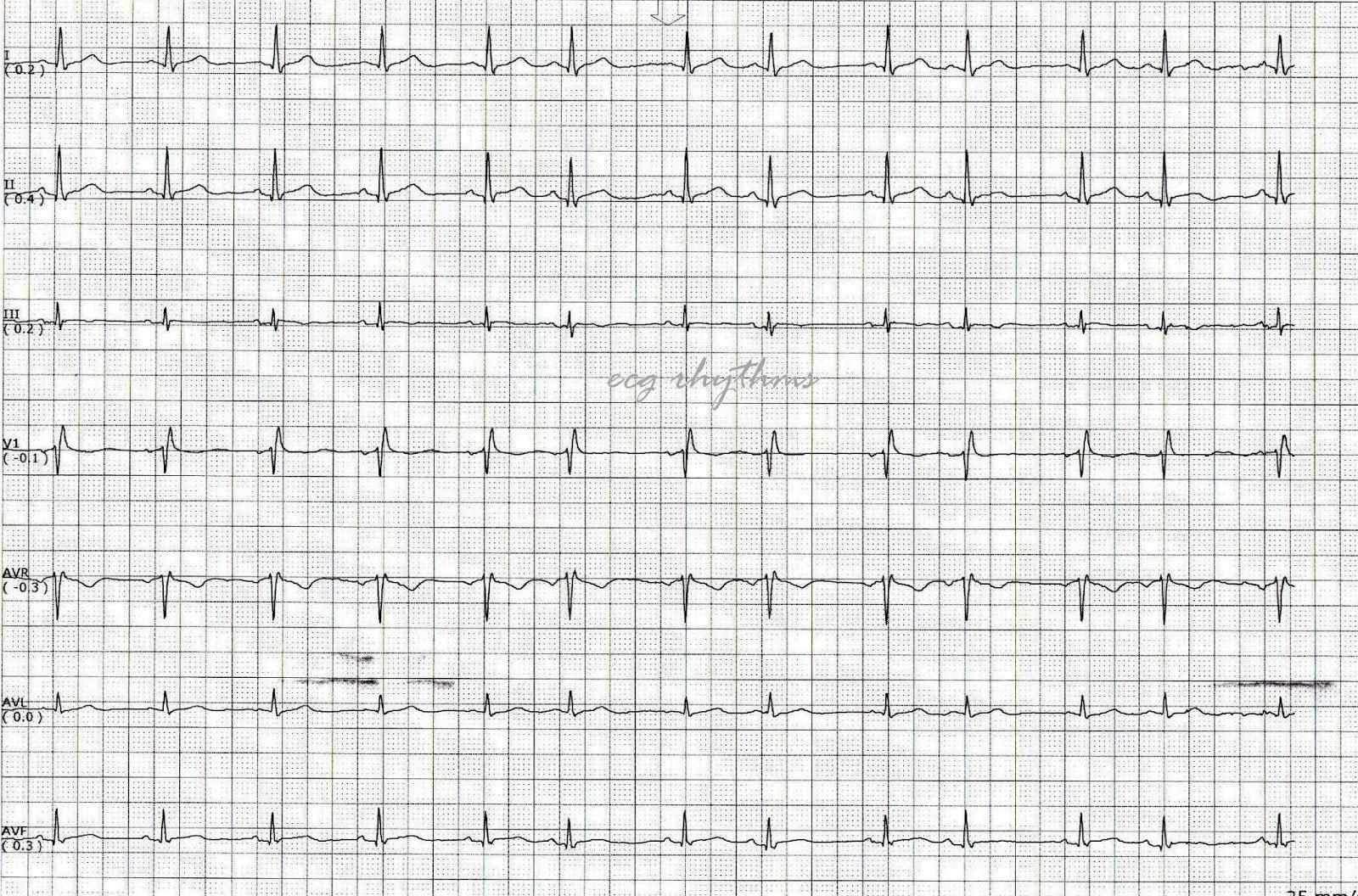 ECG Rhythms: Basic ECG Interpretation