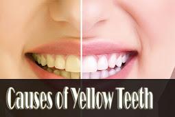 Penyebab Gigi Kuning Padahal Rajin Sikat Gigi, Ini Faktanya