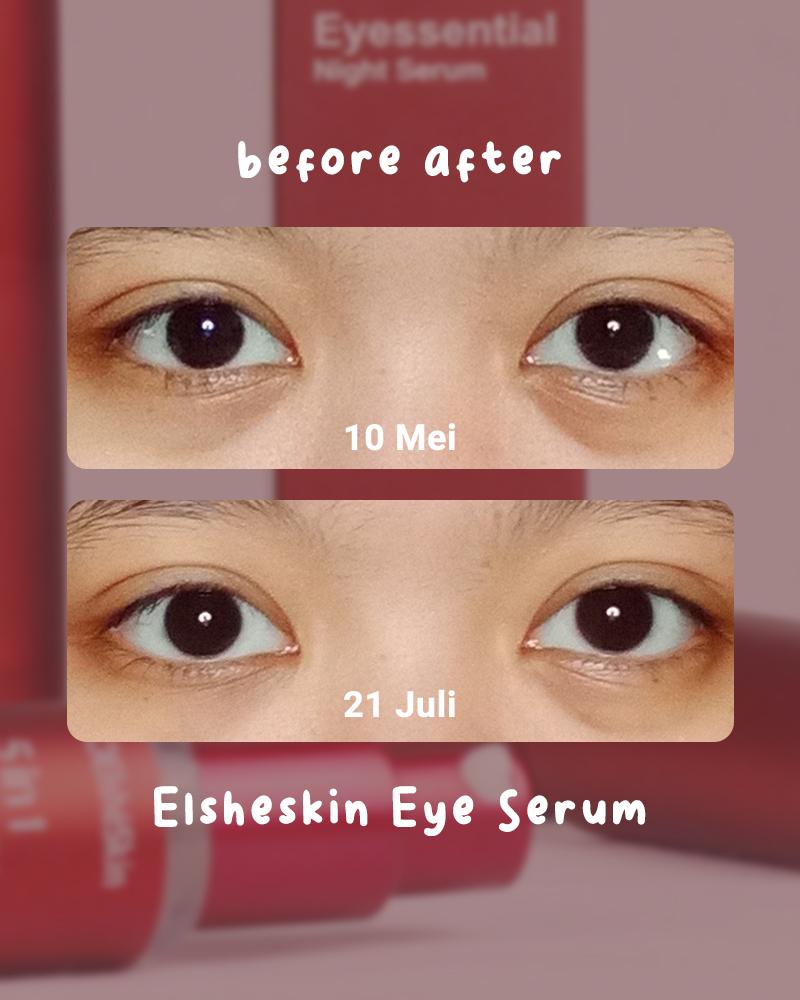 Siapa yang suka begadang trus area bawah matanya jadi gelap Review Elsheskin 5 in 1 Eyessential Night Serum