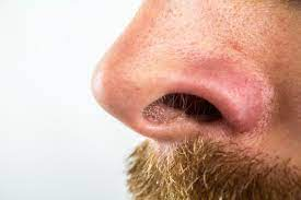 How to get rid of stubborn blackheads on nose