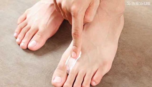 10 Rekomendasi Obat Kutu Air Paling Ampuh di Apotik
