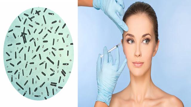 توكسين البوتولينيوم (البوتوكس) Botulinum Toxin (Botox)