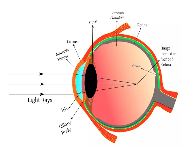 Myopia eye  , Human eye  , Myopia defect , Myopia Meaning