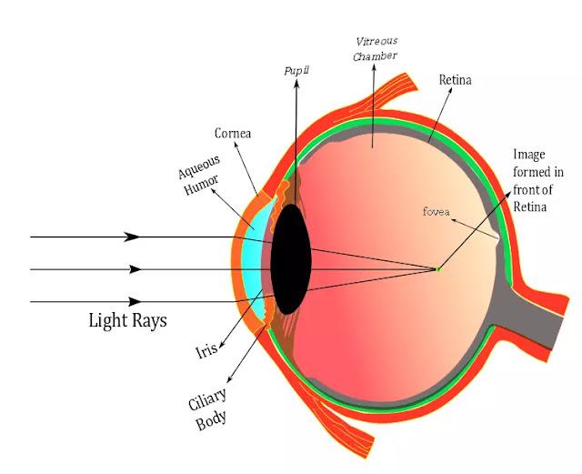 Myopia in eye , Myopia Diagram, Common eye defects