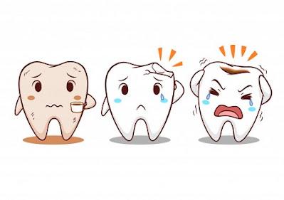 penyebab masalah gigi dan mulut yang paling umum