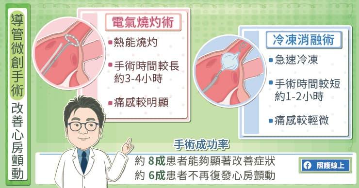 導管微創手術改善心房顫動