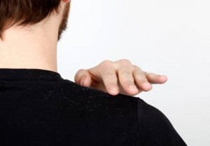 6 këshilla për largimin e zbokthit nga nga flokët tuaj