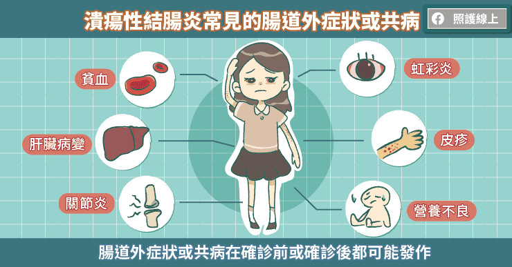 潰瘍性結腸炎常見的腸道外症狀或共病