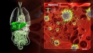 cara menyembuhkan hepatitis c