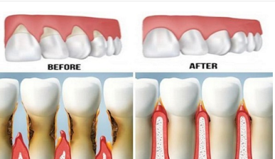 Grow Back Your Receding Gums In No Time With The Help Of These Natural Remedies