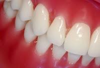 Comment se débarrasser de la gingivite