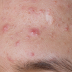 How To Prevent From  Adult Acne, Stop Adult Acne And Pimples From Developing