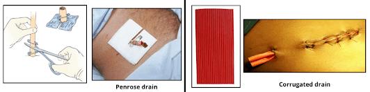 penrose drain