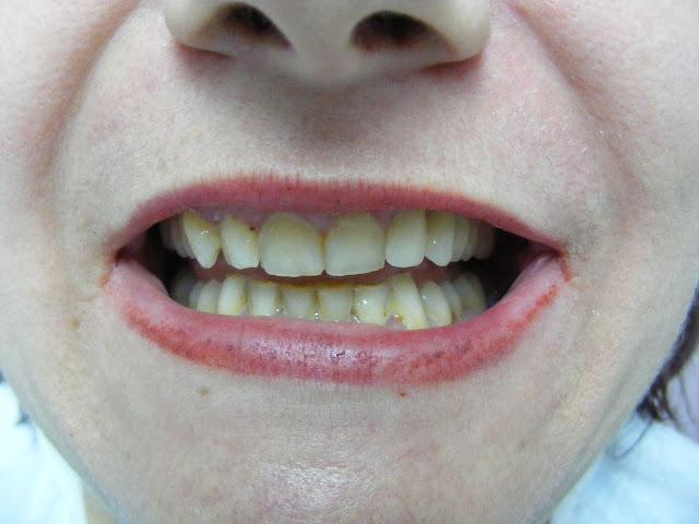 zirkonyum diş resim